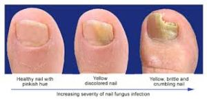nail-fungus-ayurvedic-home-remedy
