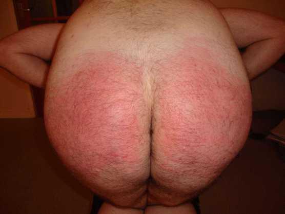 sore bum, spanked ass
