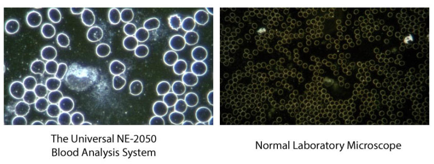 Comparison between one of our Microscope Systems and a normal Laboratory Microscope