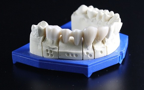 tooth-replacement-759928_640