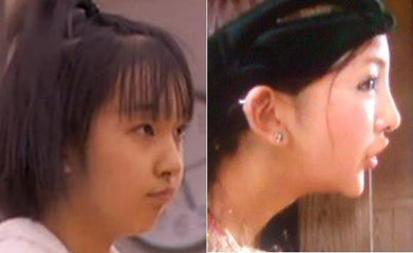 7ecef662 - 美容整形で顔が変わった芸能人ランキング、before/after写真を大公開