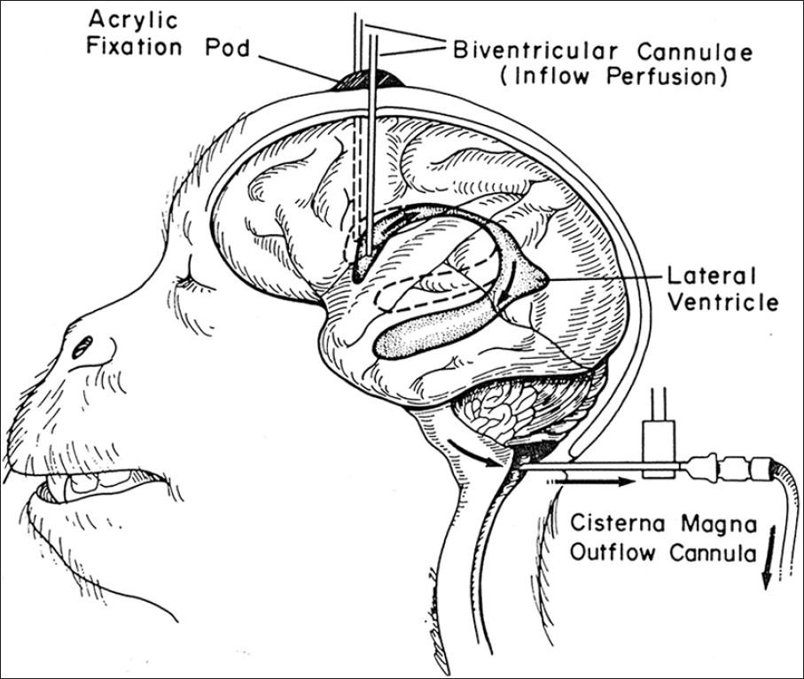 地 球 情 報 局 : イタリアの医師が計画、首から下が麻痺した患者の頭部を切り離し、脳死と判定された他人の体に移植