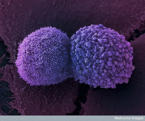 がん細胞6