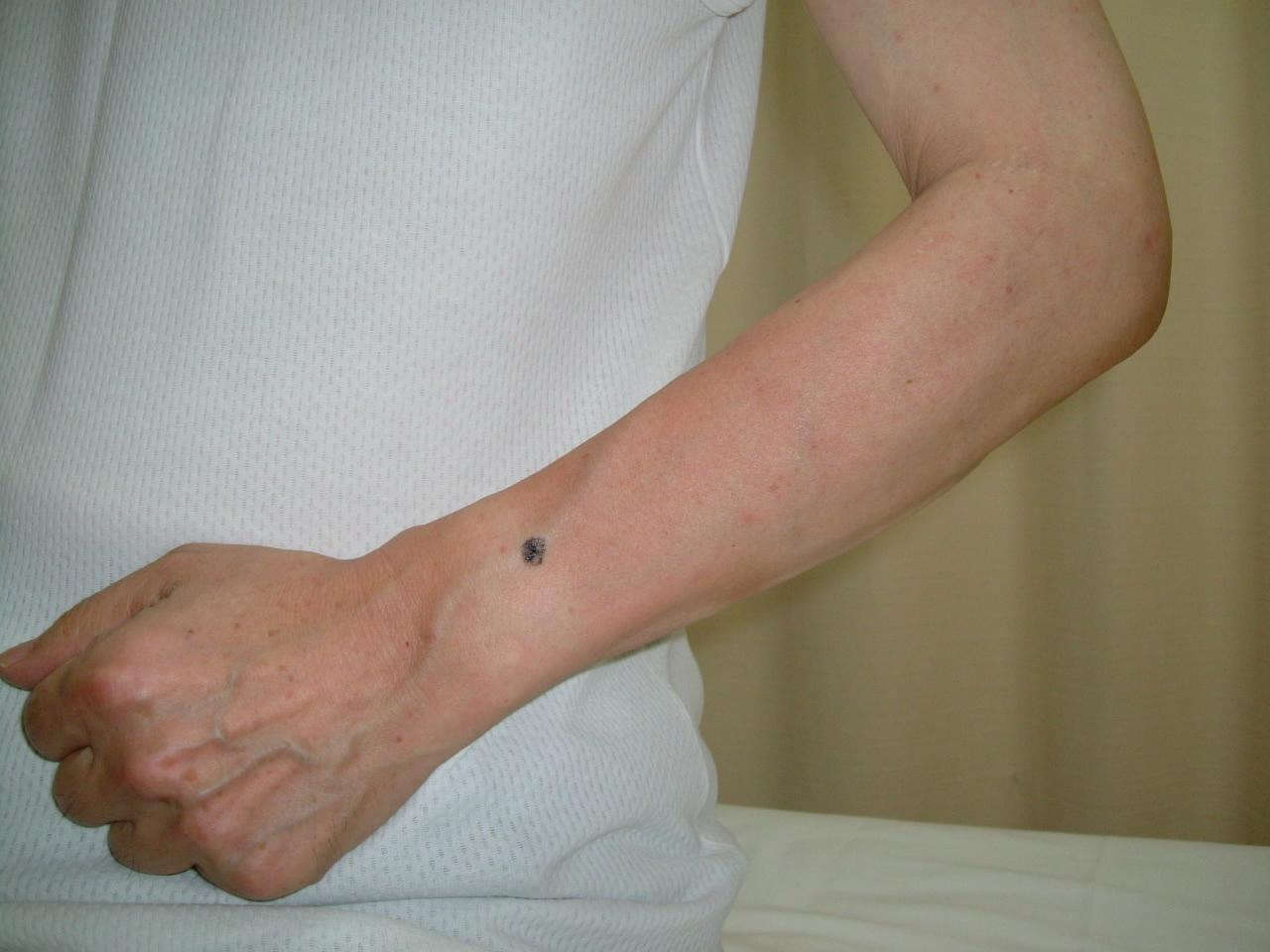 鍼灸治療のQ&Aブログ : 肩凝り