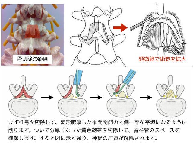 腰椎椎弓切除術を受ける方へ : とぜんな脊椎外科醫のブログ
