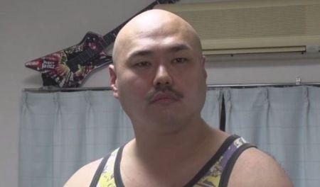 安田大サーカス クロちゃん 脳動脈瘤 手術に関連した画像-01