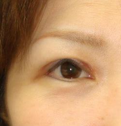眼瞼下垂で「三角眼」になったとよく聞きますが,どうしてですか?1 : 名古屋のこいずみ形成クリニックの ...