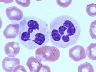 白血球過低|- 白血球過低| - 快熱資訊 - 走進時代