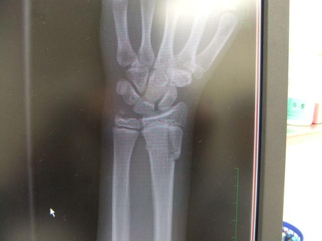 橈骨骨折・・・11歳女子 : 大崎治療室(針灸接骨院)