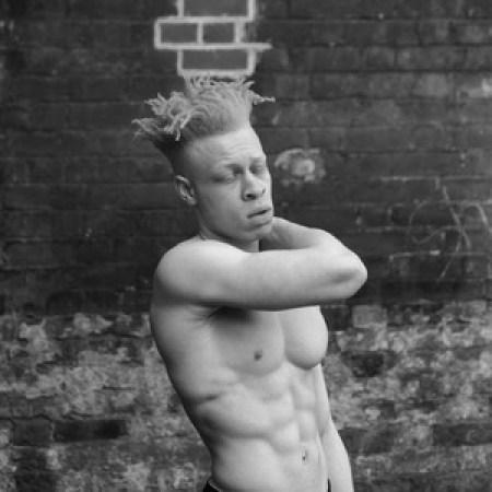 negr-albinos_12