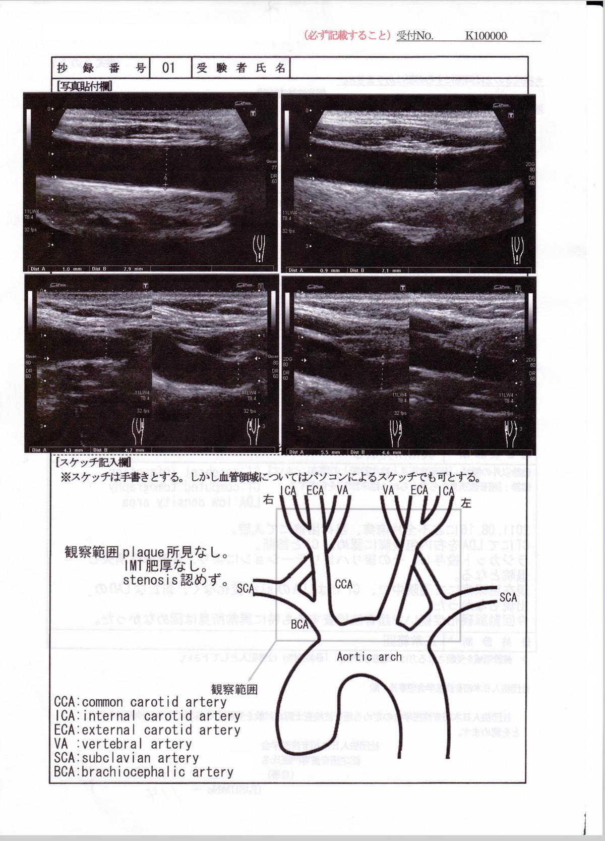 yanchangの現在修行中 : 超音波検査実績(その4)