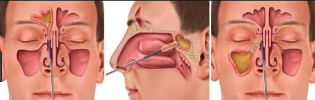 FESS sinusitis  surgery