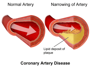 arteriosclerosis, CAD, Coronary artery, cerebellar artery , cardial arrest , heart block , plaque, death , ischemic heart disease