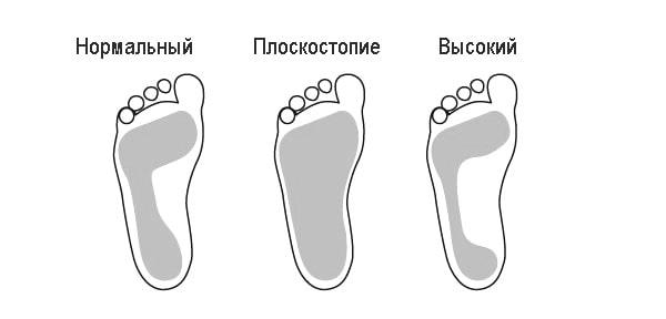 Что такое пронация стопы и ее типы. Как правильно выбирать беговые кроссовки