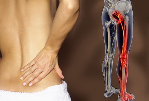 The Four Main Causes of Sciatica  And How Chiropractic Can Help