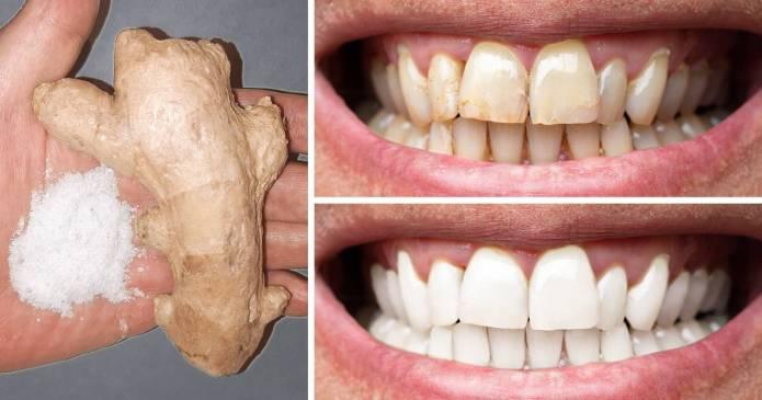 7 moduri naturale de a-ți albi dinții acasă