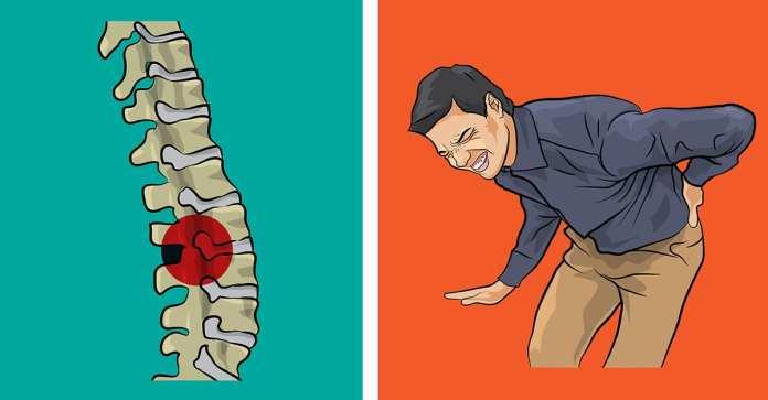 Nu ignora primele simptome ale durerii de spate!