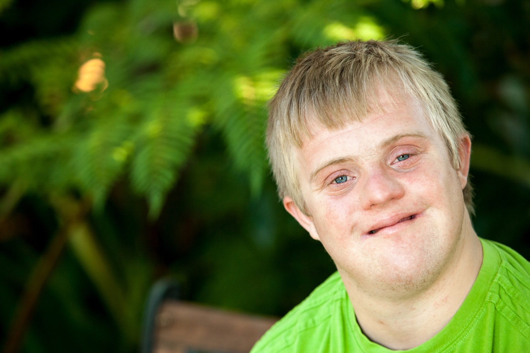Dementia And Down Syndrome