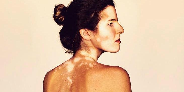 girls with vitiligo
