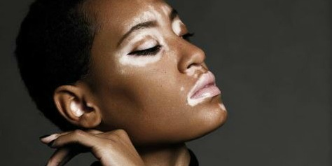 5 Tips for Modeling with Vitiligo According to the New Face of CoverGirl
