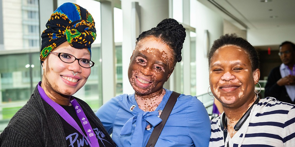 attendees at world vitiligo day conference