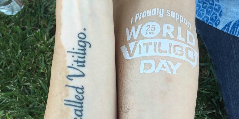 world vitiligo day tattoo on an arm