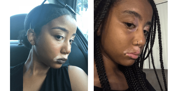 Simone shows the pigment returning on her face. Left, Simone before the treatment. Right, Simone's most recent picture after three weeks of using Clarify Medical's Home Light Therapy System. These photos have not been retouched.