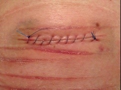 Photos #selfharm Could be triggering (2/6)