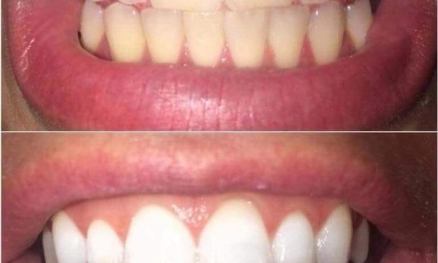 Whitening Toothpaste I use Because it Works- And a Giveaway!!