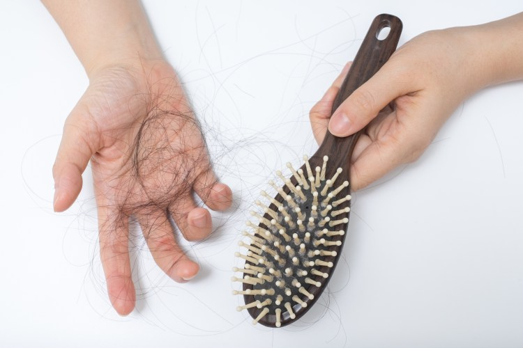 You are not going bald (overcoming non-hereditary hair loss)