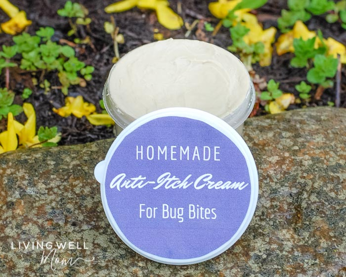 homemade anti-itch cream for itchy bug bites