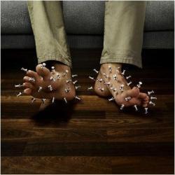 neuropathy foot pic