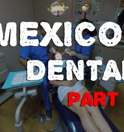 mexico dental a guide to dental surgery in los algodones livinlite net [ 1368 x 912 Pixel ]