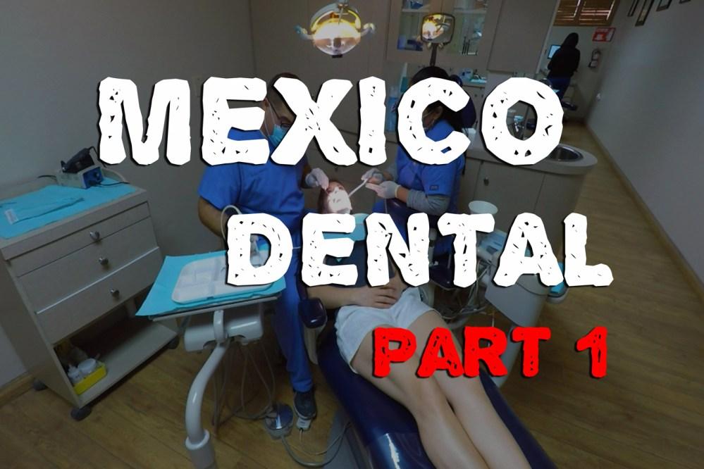 medium resolution of mexico dental a guide to dental surgery in los algodones livinlite net