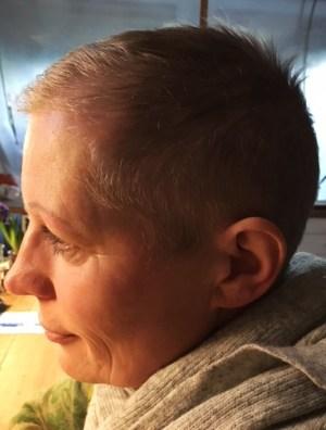 Kemoterapi kan føre til permanent hårtab