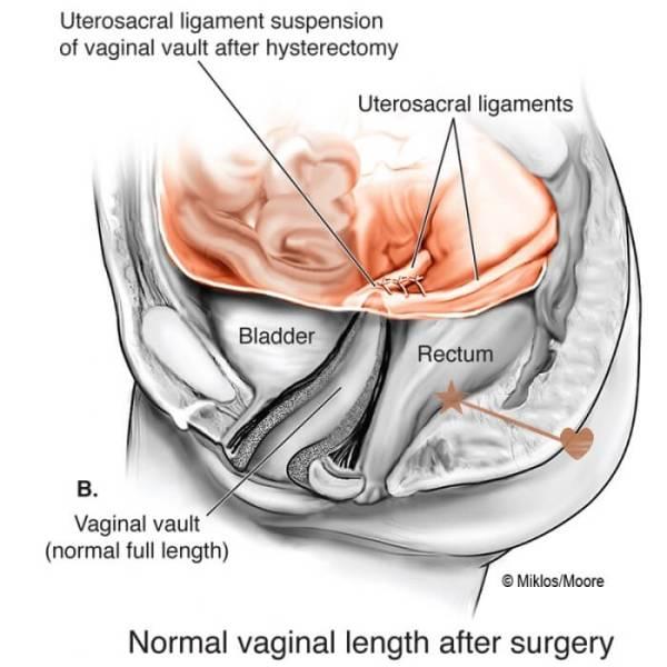Tralasciando che è il disegno di un hysterctomia, un'ipotetica fistola retto-sacrale, dovrebbe iniziare dove c'è la stellina marrone e sgorgare nel punto contrassegnato dal cuoricino marrone.