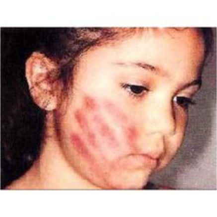 abuzul asupra copilului 10