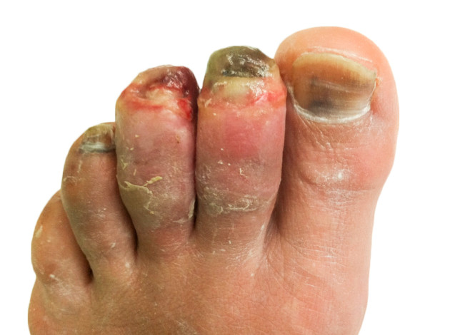 A Ranger and Paramedics Guide to Warm and Dry Feet