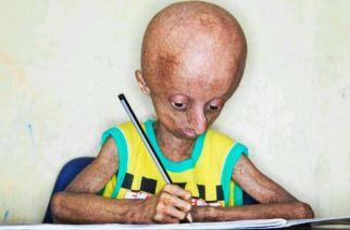 Nihal Bitla suffered from rare genetic disorder progeria