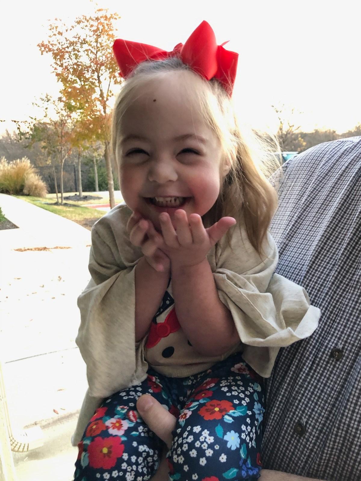 vivie robinson born with down syndrome
