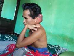 Pria Pengidap Tumor Ganas dari Lombok Tengah Butuh Uluran Tangan