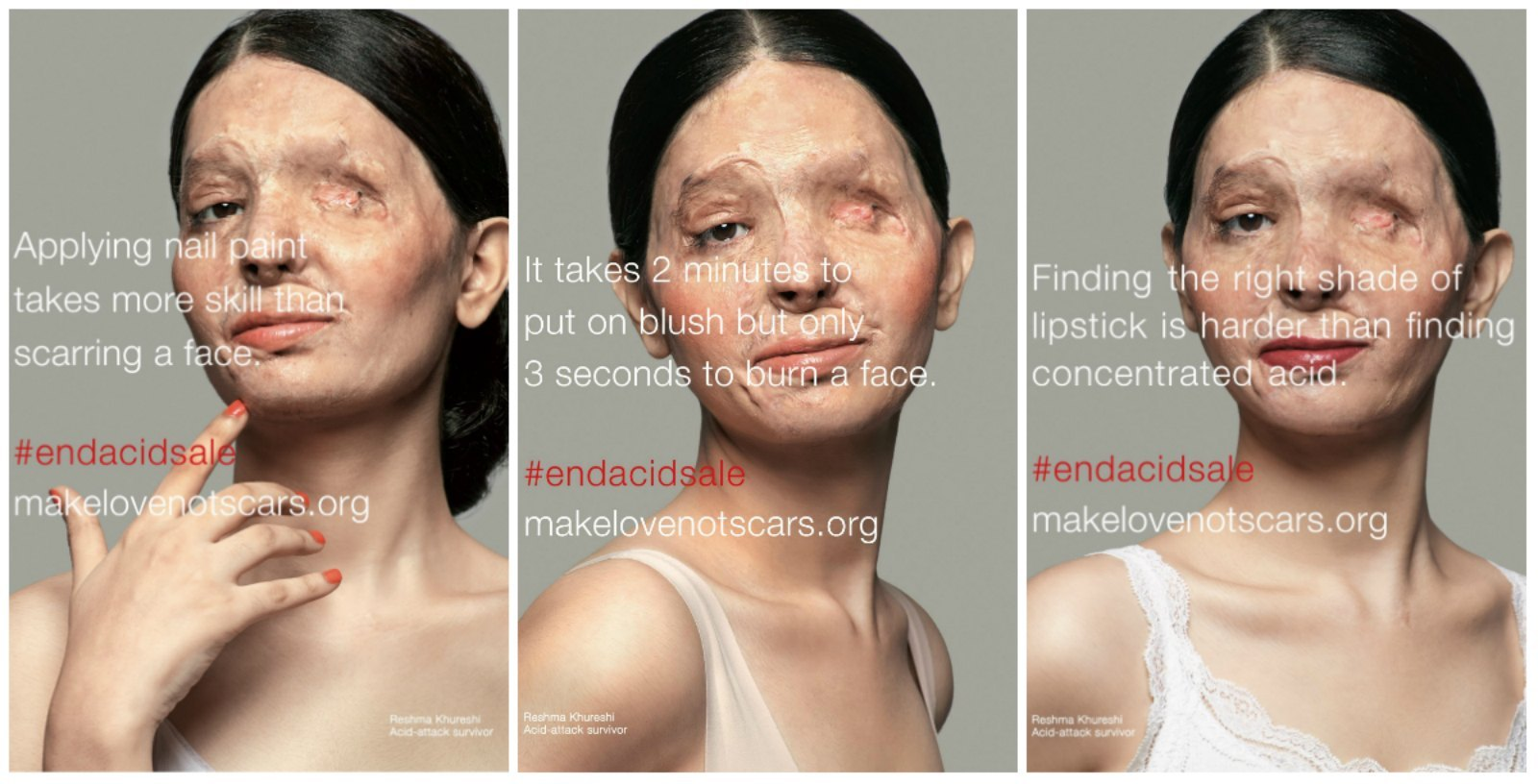 reshma-qureshi-india-acid-attack