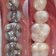 get rid of old silver filling and enjoy mercury free dentistry