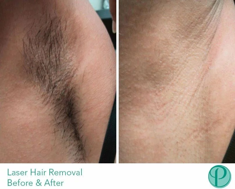 Laser Hair Removal for Full Body How Long Does It Take
