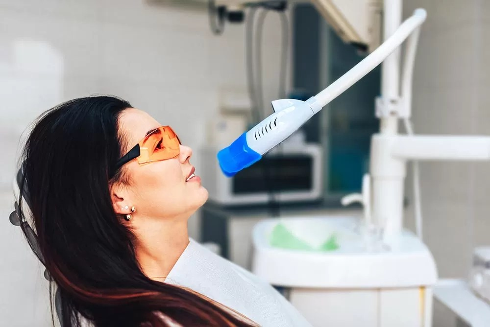 Tooth Whitening and the right questions