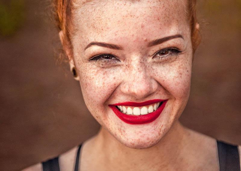 teeth whitening lady