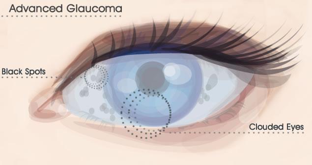advanced-glaucoma