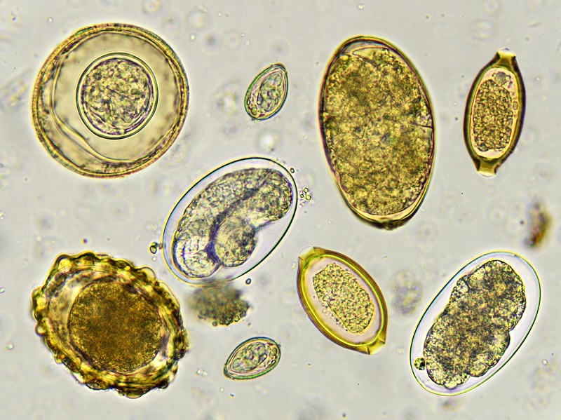 Eggs of helminth in stool, as viewed by a microscope.