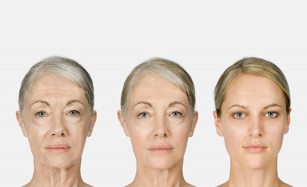Regenerative Reprogramming to Beat Aging Say Researchers
