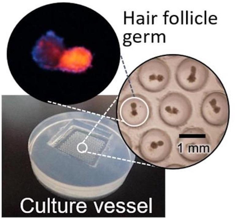 Vessel for preparing hair follicle germs